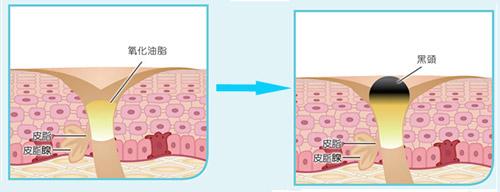 专业祛痘的方法