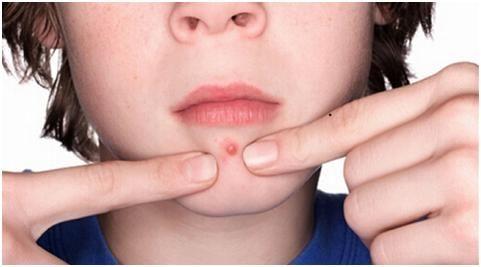嘴边长痘痘是什么原因