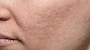 祛痘痕的方法