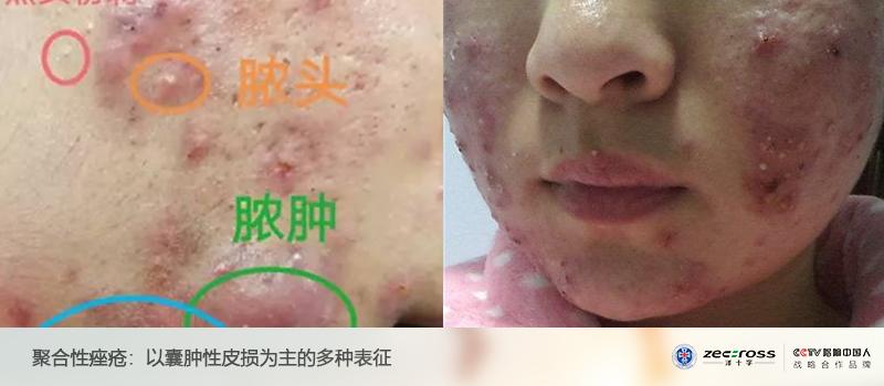 痤瘡 尋常 性 【人體奧妙】長痘痘嗎?可能是攝取太多維生素B12了喔!